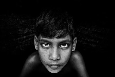 Periorbital Hematoma (memar di sekitar mata) : Gejala, penyebab, dan pengobatan