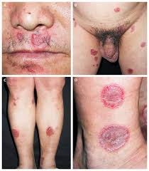 Syphilis is a systemic infection caused by the spirochete Treponema pallidium