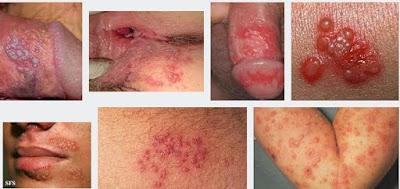 Apakah Penyakit Herpes Menular