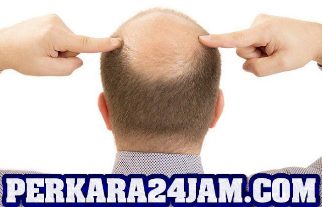 Tips Mencegah Kerontokkan Rambut Pada Pria Secara Efektif