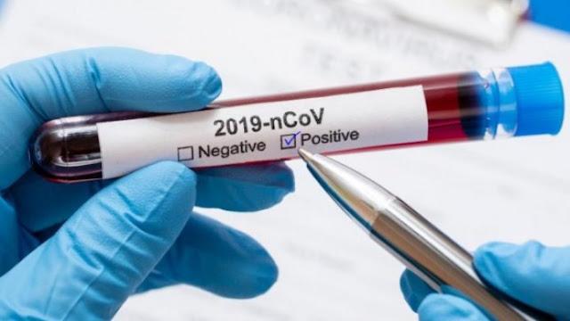 المهدية : تسجيل 58 اصابة جديدة و 2 وفايات بفيروس كورونا