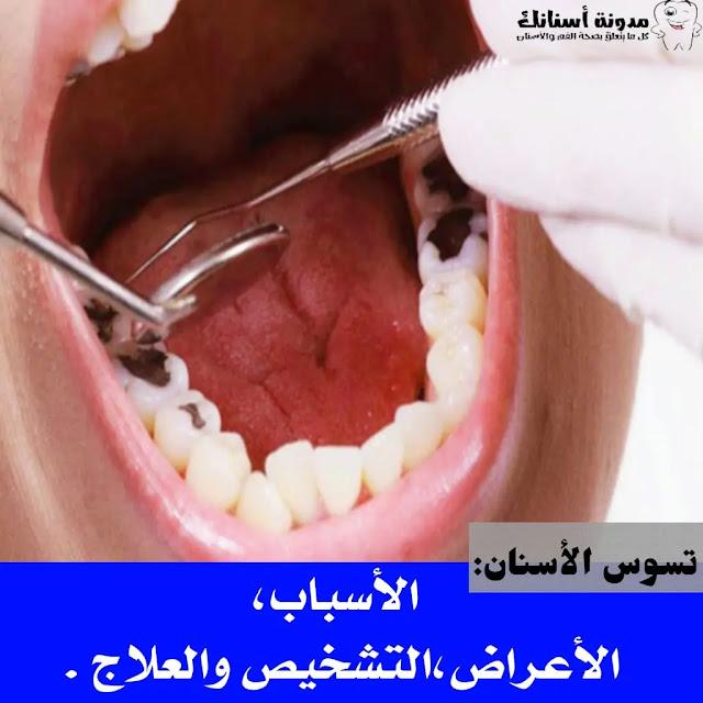 تسوس الأسنان الأسباب، الأعراض،التشخيص والعلاج .