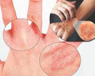 Sử dụng nước nhiễm sắt thường xuyên gây ra các bệnh nguy hiểm