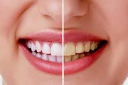 5 Cara Alami Memutihkan Gigi Yang Perlu Dicoba