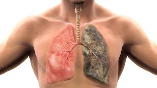 cancer a los pulmones conocer como puedes prevenirlas
