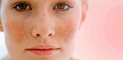 Skin Diseases Names and 10 Skin Diseases