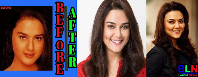 PREITY ZINTA Bollywood Actresses Before and After Plastic Surgery