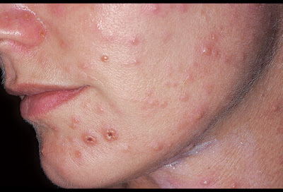 Yeast infection facial rash
