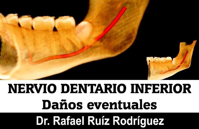 NERVIO DENTARIO INFERIOR: Daños eventuales - Dr. Rafael Ruíz Rodríguez