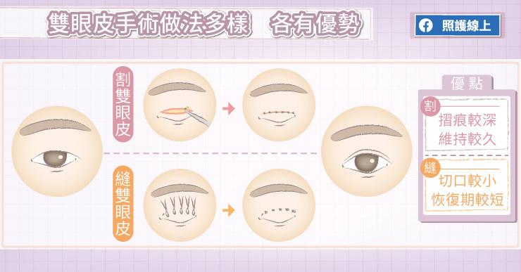 雙眼皮手術做法多樣,各有優勢