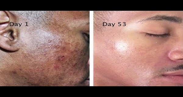 Get Rid Of The Stains, Spots, And Hyperpigmentation With This Natural Recipe With 2 Ingredients!
