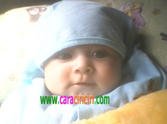 bayi dengan kelainan jantung bawaan