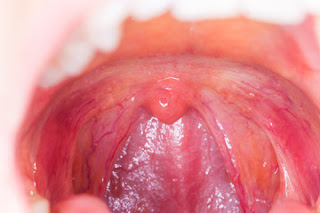 function of tonsils