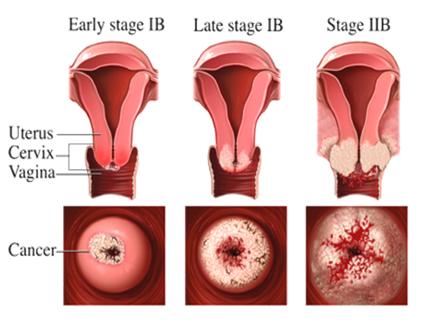Gambar Kanker Serviks dan Penyakit Berbahaya Lainnya - Berbagi Wawasan