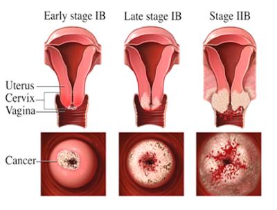 Gambar Kanker Serviks dan Penyakit Berbahaya lainnya | Dwi Rahayu's ...