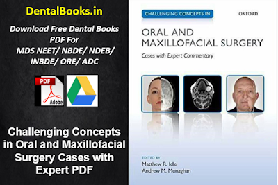 Challenging Concepts in Oral and Maxillofacial Surgery Cases with Expert PDF