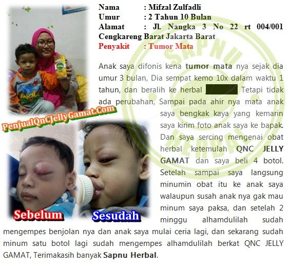 Pengobatan Tradisional Kanker Nasofaring Terampuh yg TERBUKTI Manjur !!