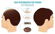 Why People Check Fue Cost In India Before A Hair Transplant?
