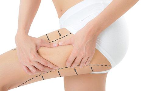 reducción de muslos