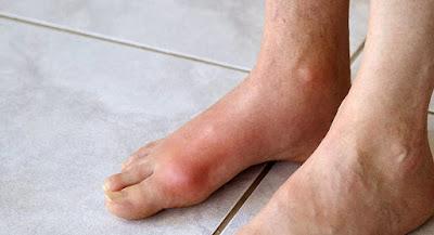 Corticosteroid Vs NSIDs In Acute Gouty Arthritis