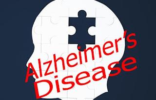 Alzheimer's Disease | Knowladge Facts