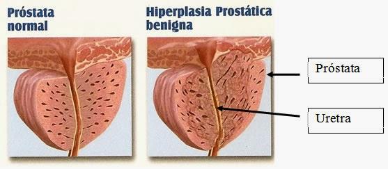 la próstata agrandada ocurre en la orina