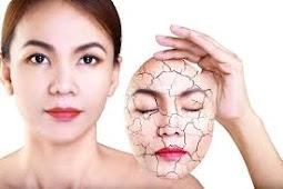 8 Perawatan di rumah untuk mengatasi kulit kering bersisik