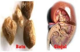 Gambar Apakah ada obat herbal batu ginjal yang ampuh Dan Aman