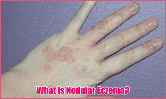 What Is Nodular Eczema