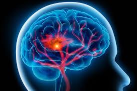 Bagaimana Mengobati Penyakit Stroke Ringan?, apa obat alami stroke sebelah kanan yang manjur?