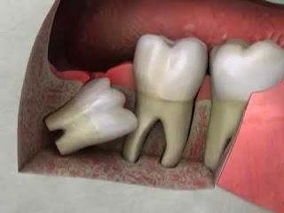 Enlèvement des dents de sagesse Impacté