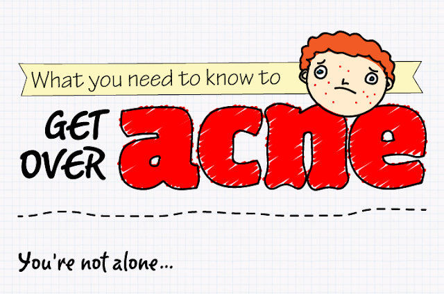 Get Over Acne - Tips