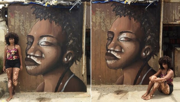 Teen with vitiligo has a mural done in her honor