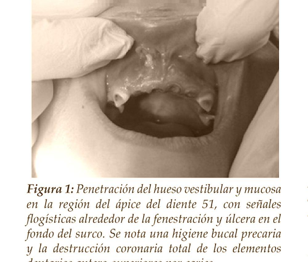 Medicina Bucal
