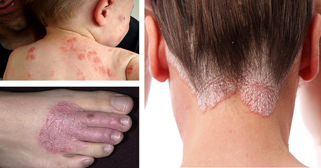6 Natural Remedies for Eczema, Rashes and A Range Of Persistent Skin Conditions