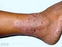 cara menyembuhkan kulit gatal bersisik yang sudah parah