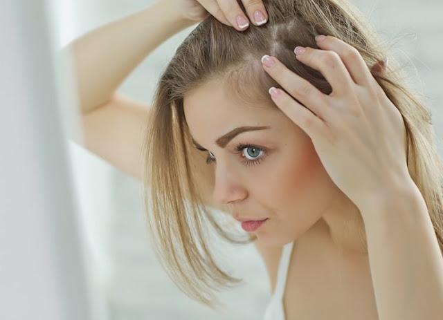 Todo sobre la caída del cabello en mujeres y hombres