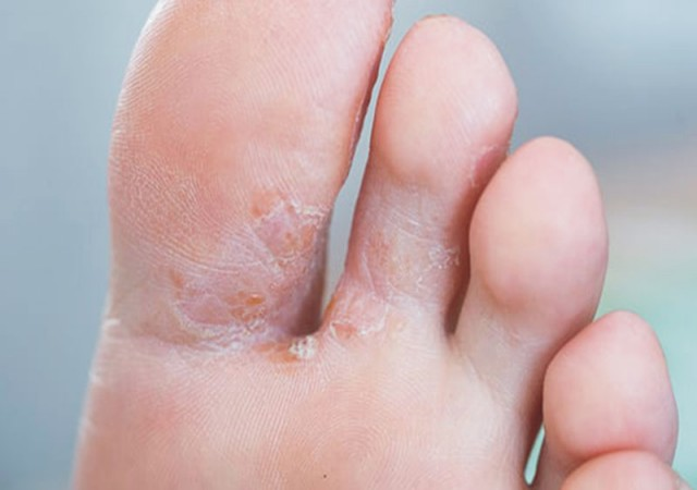 five common foot problems, Causes and treatments