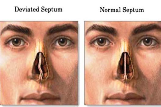 Understanding a Deviated Septum: Health Tip