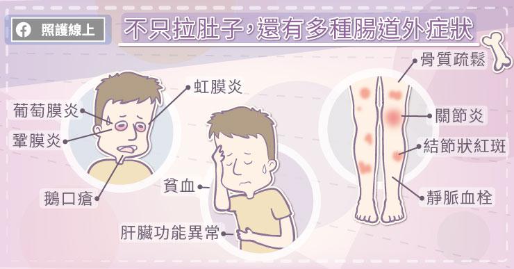不只有腸道!克隆氏症還可能有多種腸道外症狀