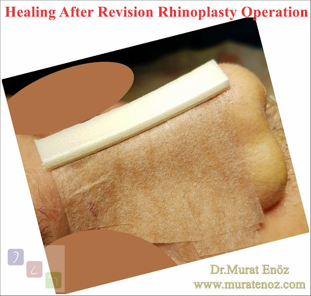 Revision nose aesthetic surgery - Secondary rhinoplasty - Revision nose job in Istanbul - Secondary nose job in Turkey - Secondary nose cosmetic surgery - Tertiary rhinoplasty - Secondary rhinoplasty challenges - Revision rhinoplasty using rib cartilage - Polly beak deformity - Cost of Revision Rhinoplasty in Istanbul - Healing After Revision Rhinoplasty Operation