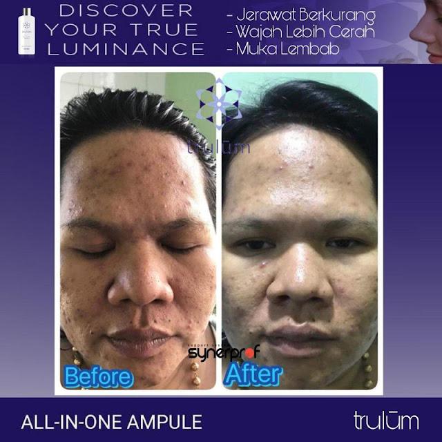 Bebas Bopeng Bekas Jerawat, Flek Hitam Tanpa Harus Laser Atau Ke Tempat Skin Care Di Sahu Timur Halmahera Barat