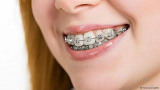 النوع الأول تقويم الأسنان الثابت المعدني: