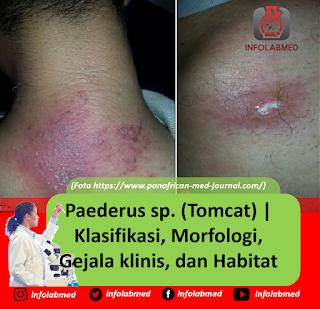 Paederus sp. (Tomcat) Klasifikasi, Morfologi, Gejala klinis, dan Habitat