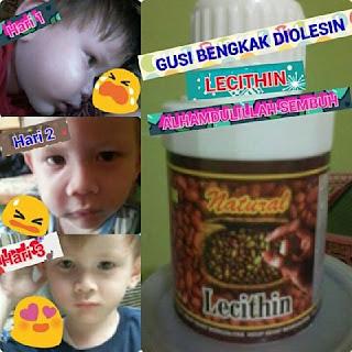 efek samping lecithin produk nasa