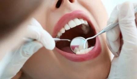 Cara Merawat Gigi dan Mulut Sehat dengan Benar
