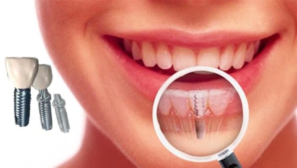 dental implants expensive