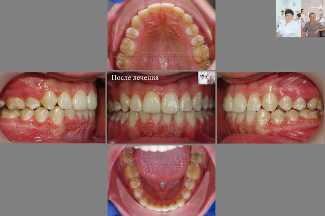 Зубы  пациента после лечения брекетами