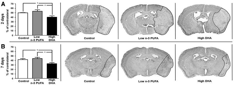写真:DHAで脳梗塞治療