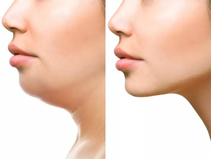 3 Things You Need to Know Before Scheduling Your First Appointment for Kybella